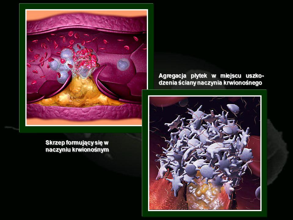 Agregacja płytek w miejscu uszko- dzenia ściany naczynia krwionośnego Skrzep formujący się w naczyniu krwionośnym