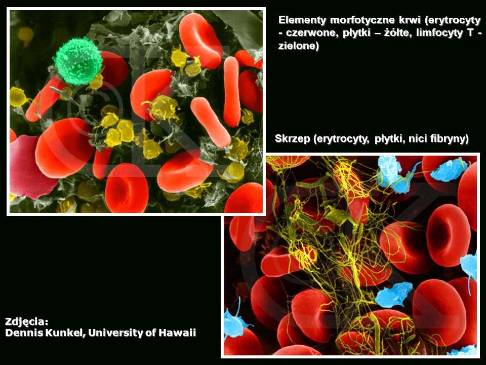 Elementy morfotyczne krwi (erytrocyty - czerwone, płytki – żółte, limfocyty T - zielone) Skrzep (erytrocyty, płytki, nici fibryny) Zdjęcia: Dennis Kun
