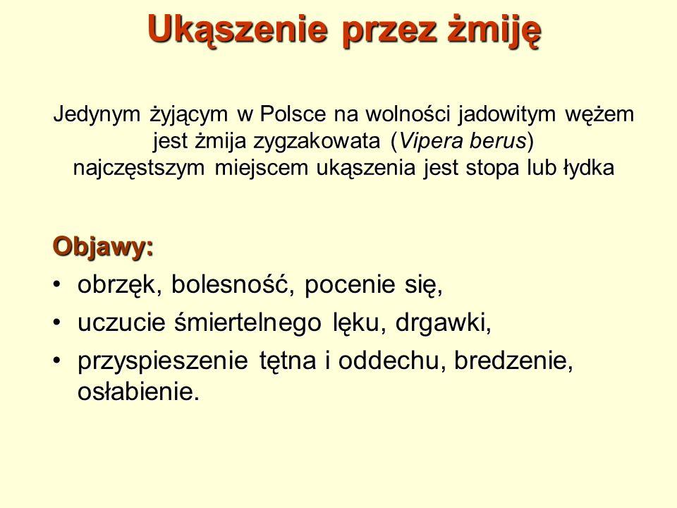 Ukąszenie przez żmiję Jedynym żyjącym w Polsce na wolności jadowitym wężem jest żmija zygzakowata (Vipera berus) najczęstszym miejscem ukąszenia jest