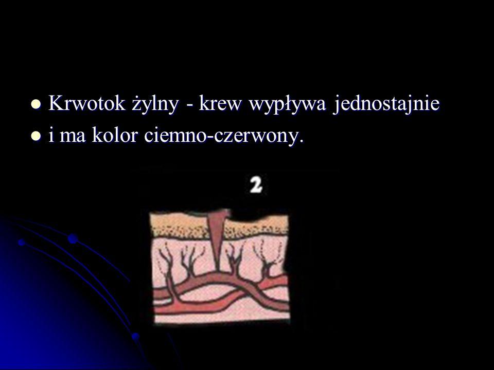Krwotok żylny - krew wypływa jednostajnie Krwotok żylny - krew wypływa jednostajnie i ma kolor ciemno-czerwony. i ma kolor ciemno-czerwony.