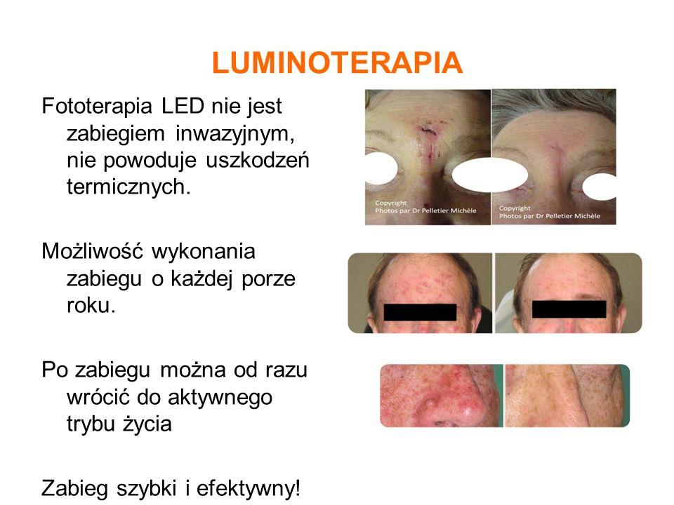 LUMINOTERAPIA Fototerapia LED nie jest zabiegiem inwazyjnym, nie powoduje uszkodzeń termicznych. Możliwość wykonania zabiegu o każdej porze roku. Po z