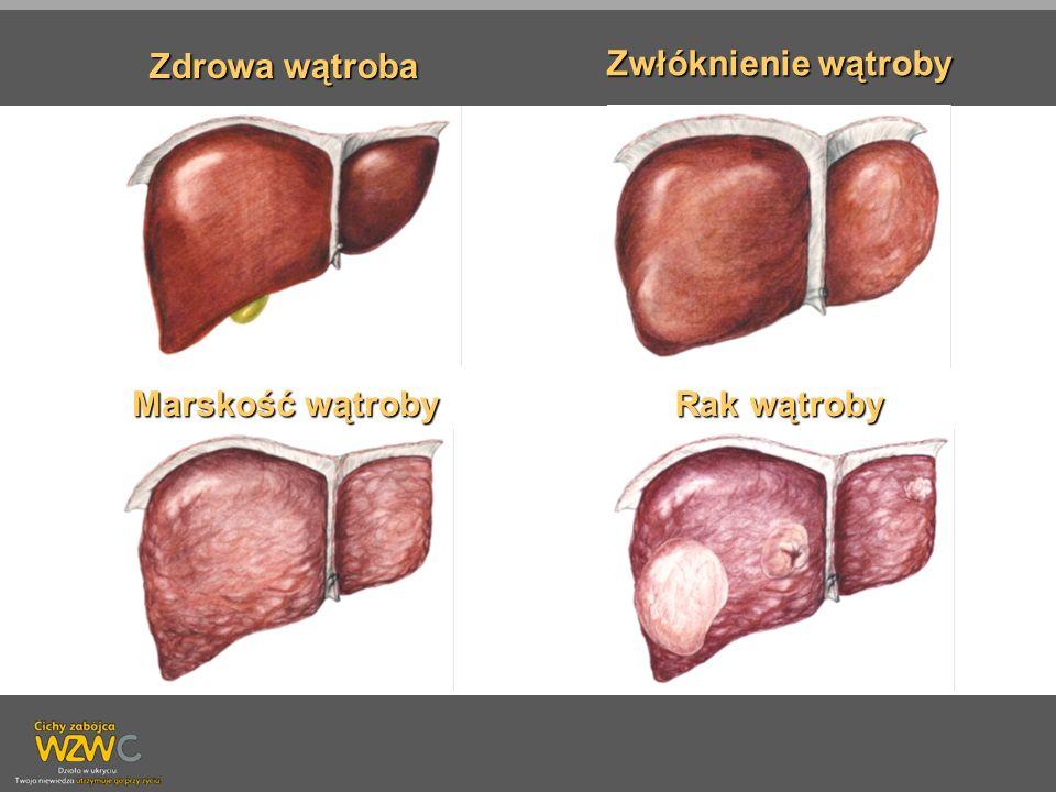 Zwłóknienie wątroby Marskość wątroby Rak wątroby Zdrowa wątroba