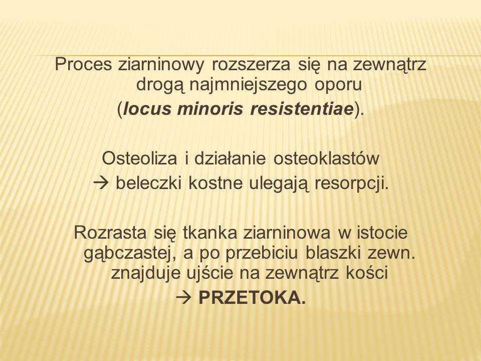 Proces ziarninowy rozszerza się na zewnątrz drogą najmniejszego oporu (locus minoris resistentiae). Osteoliza i działanie osteoklastów beleczki kostne