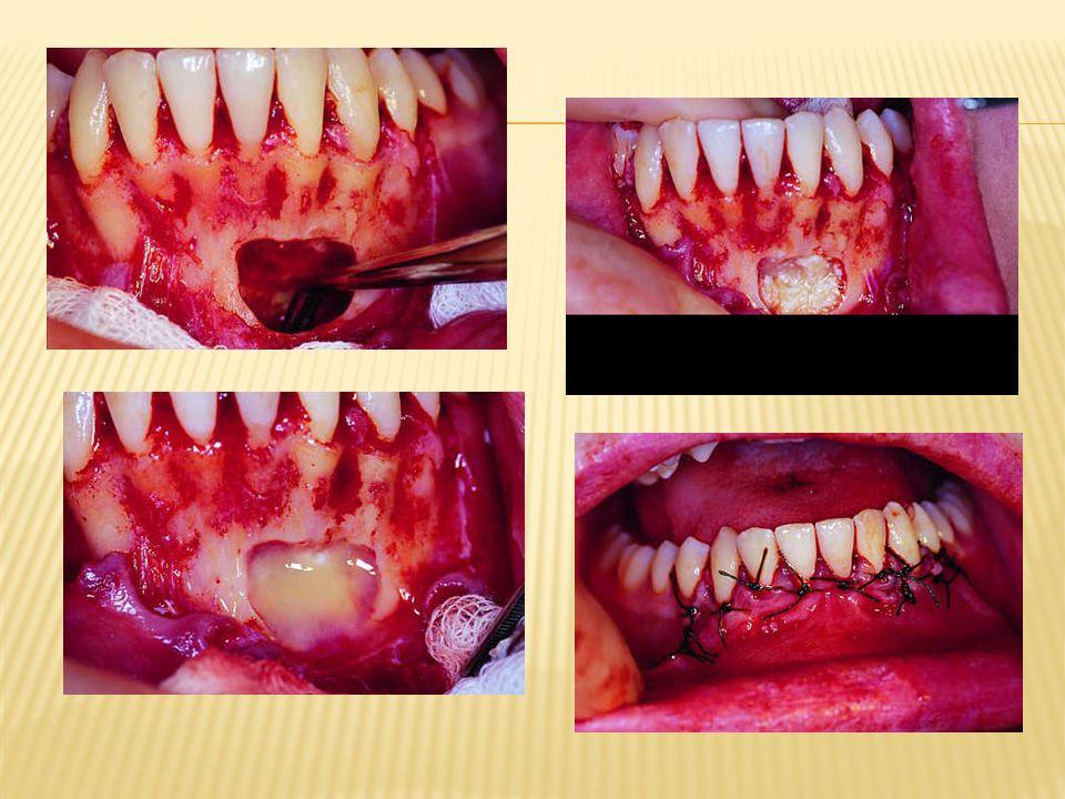 Kiła późna może również wystąpić we wnętrzu kości lub w obrębie okostnej pod postacią kilaka (gumma).