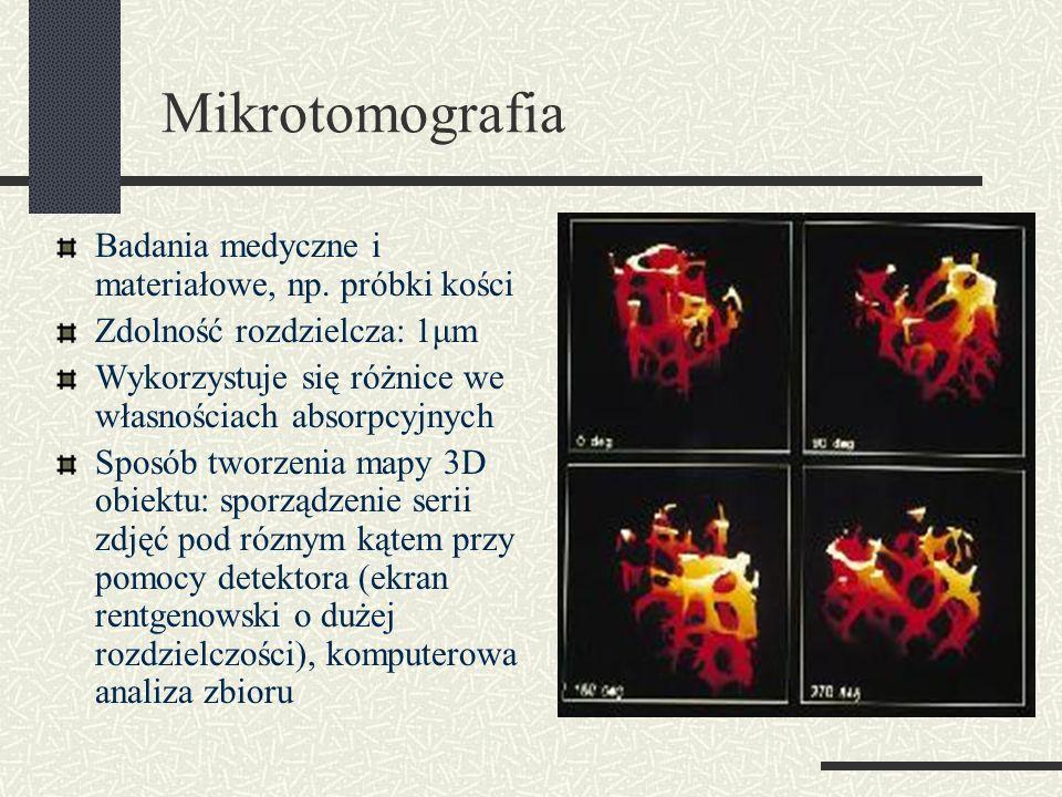 Mikrotomografia Badania medyczne i materiałowe, np. próbki kości Zdolność rozdzielcza: 1μm Wykorzystuje się różnice we własnościach absorpcyjnych Spos