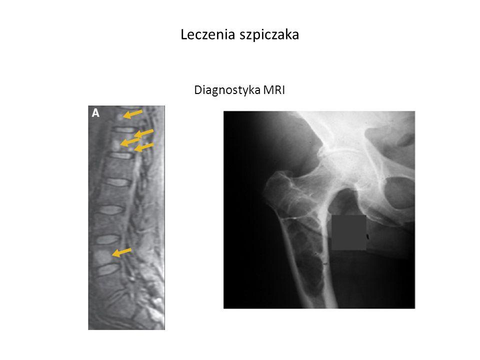 Palumbo A et al. Leukemia 2008, 22, 414-423