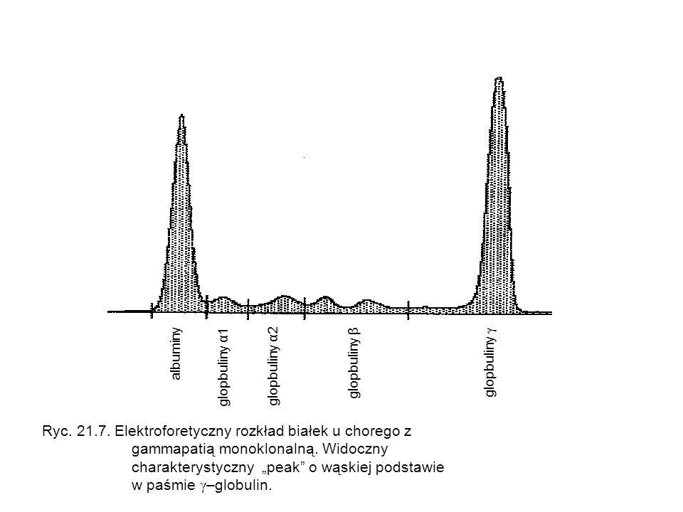 albuminy glopbuliny α1 glopbuliny α2 glopbuliny β glopbuliny γ Ryc. 21.7. Elektroforetyczny rozkład białek u chorego z gammapatią monoklonalną. Widocz