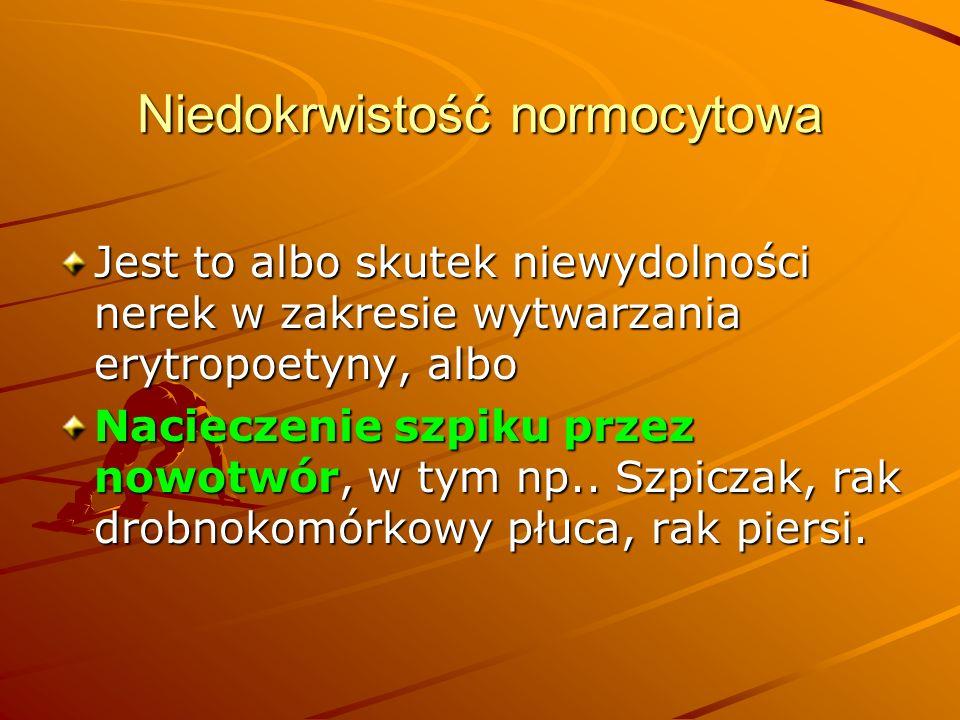 Niedokrwistość normocytowa Jest to albo skutek niewydolności nerek w zakresie wytwarzania erytropoetyny, albo Nacieczenie szpiku przez nowotwór, w tym