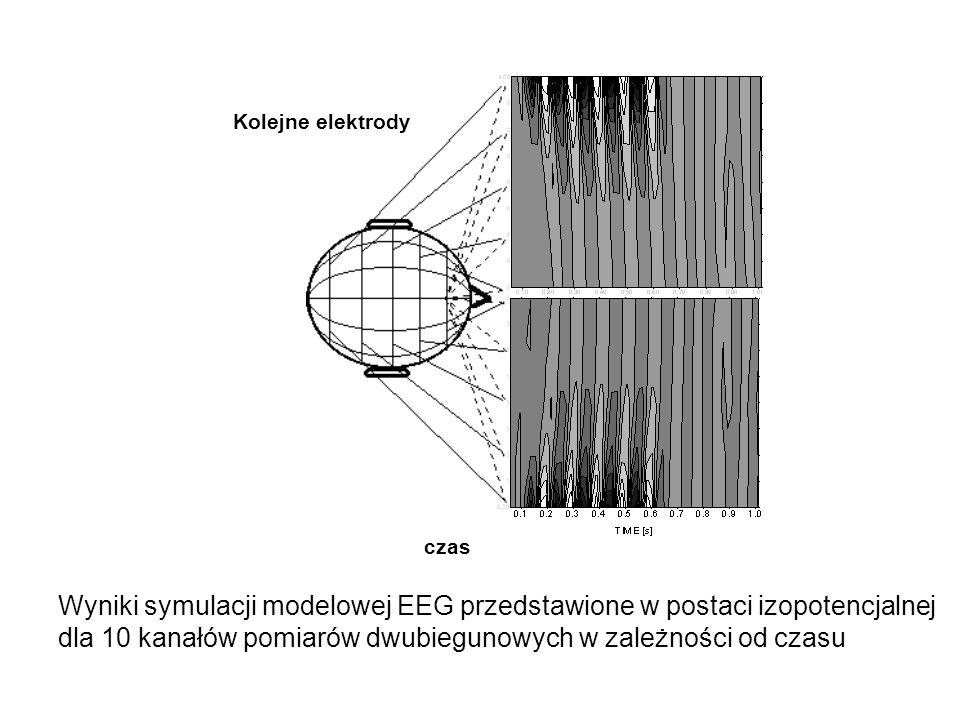 Wyniki pomiarów EEG przedstawione w postaci izopotencjalnej dla 10 kanałów pomiarów dwubiegunowych w zależności od czasu czas Kolejne elektrody 10/20