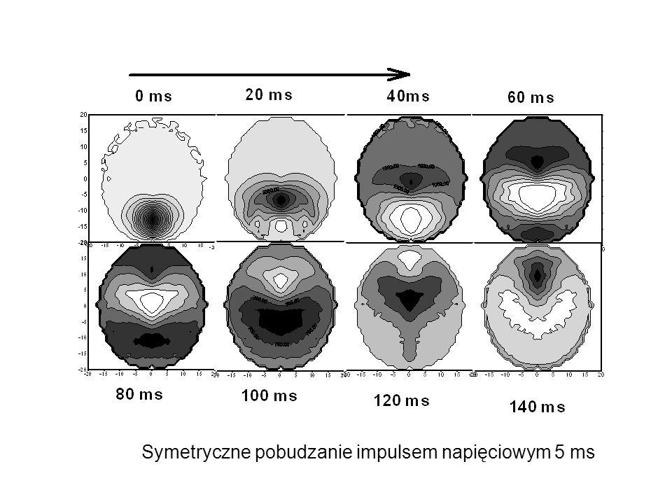 Wyniki symulacji modelowej EEG przedstawione w postaci izopotencjalnej dla 10 kanałów pomiarów dwubiegunowych w zależności od czasu Kolejne elektrody