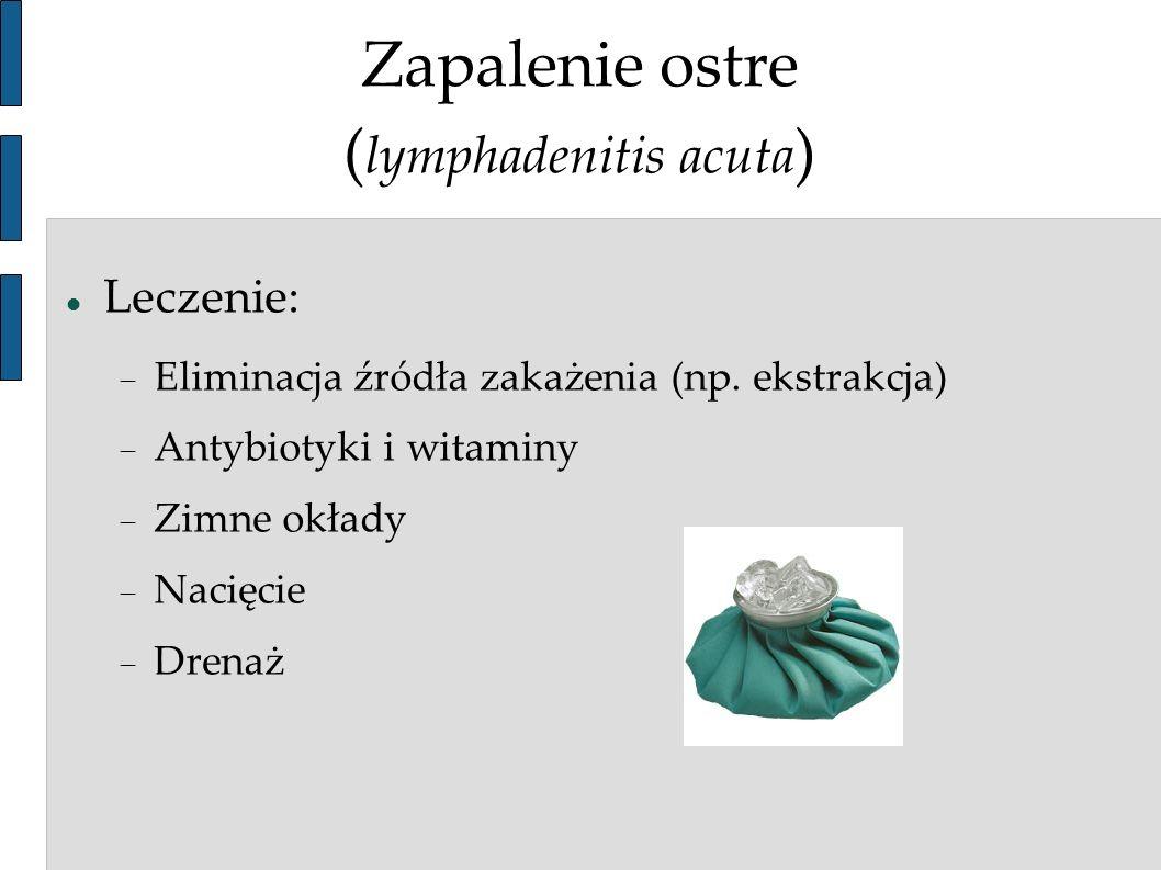Zapalenie ostre ( lymphadenitis acuta ) Leczenie: Eliminacja źródła zakażenia (np. ekstrakcja) Antybiotyki i witaminy Zimne okłady Nacięcie Drenaż
