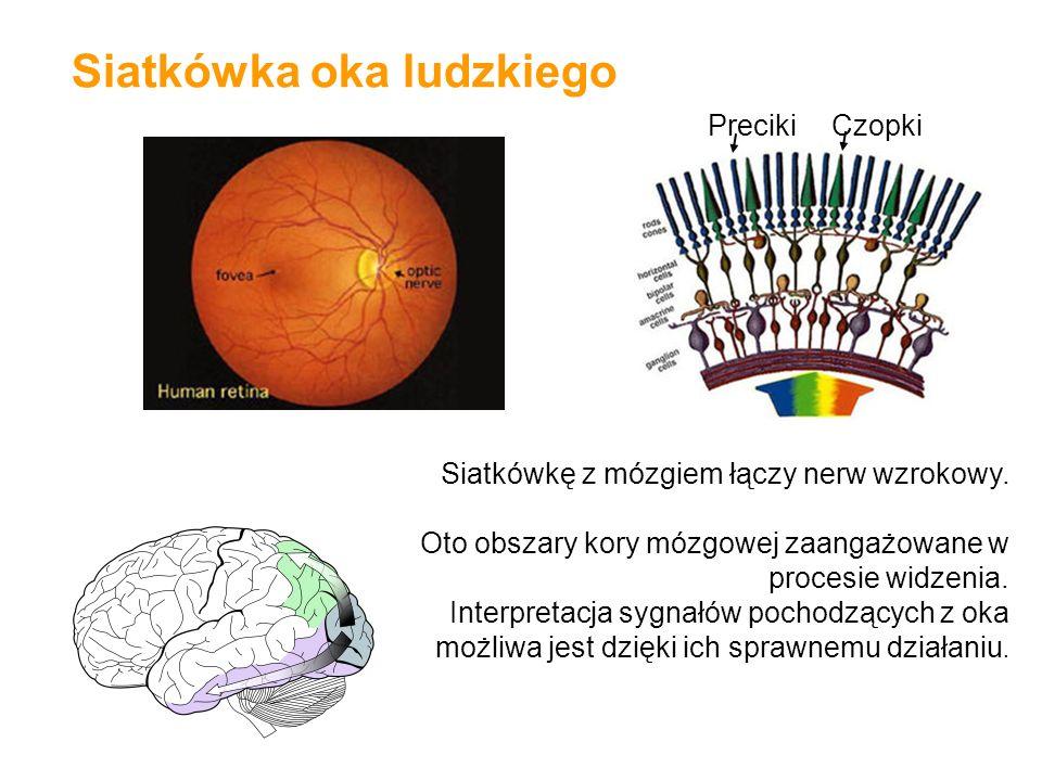 Siatkówka oka ludzkiego PrecikiCzopki Siatkówkę z mózgiem łączy nerw wzrokowy. Oto obszary kory mózgowej zaangażowane w procesie widzenia. Interpretac