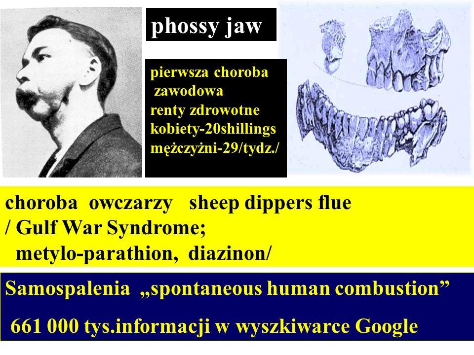 phossy jaw choroba owczarzy sheep dippers flue / Gulf War Syndrome; metylo-parathion, diazinon/ pierwsza choroba zawodowa renty zdrowotne kobiety-20sh