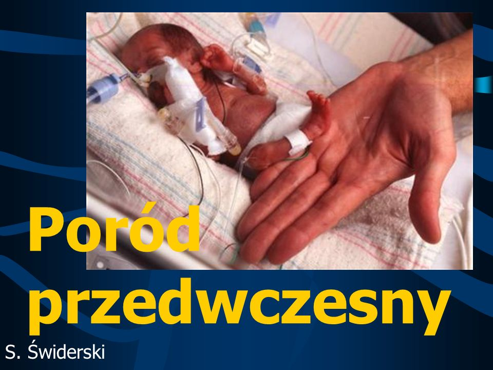 Poród przedwczesny – wg.WHO Zakończenie ciąży pomiędzy 23.