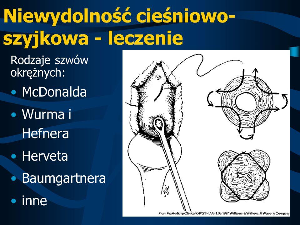 Niewydolność cieśniowo- szyjkowa - leczenie Rodzaje szwów okrężnych: McDonalda Wurma i Hefnera Herveta Baumgartnera inne
