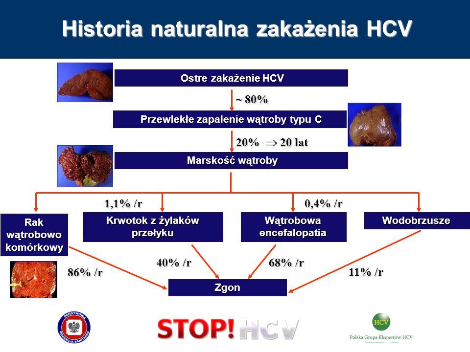 Historia naturalna zakażenia HCV Rak wątrobowo komórkowy Ostre zakażenie HCV Ostre zakażenie HCV Zgon Przewlekłe zapalenie wątroby typu C Przewlekłe z