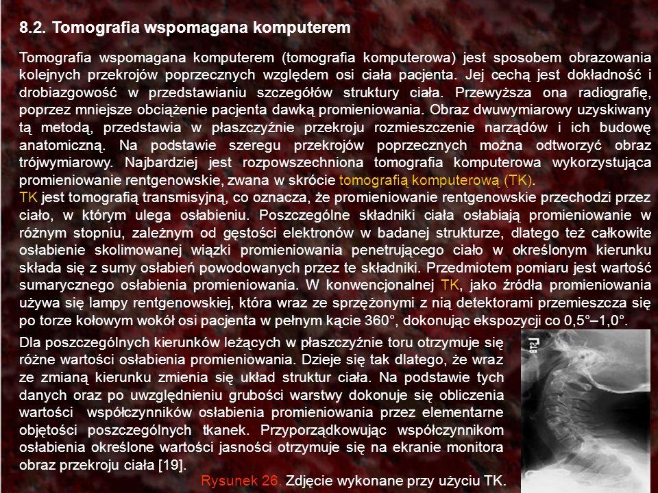 8.2. Tomografia wspomagana komputerem Tomografia wspomagana komputerem (tomografia komputerowa) jest sposobem obrazowania kolejnych przekrojów poprzec