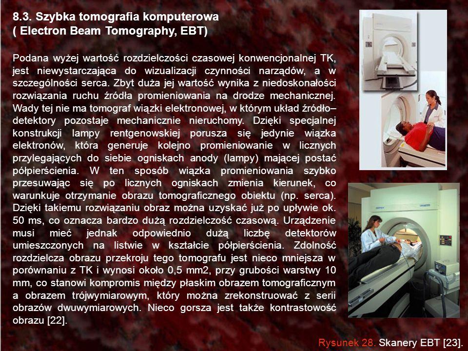 8.3. Szybka tomografia komputerowa ( Electron Beam Tomography, EBT) Podana wyżej wartość rozdzielczości czasowej konwencjonalnej TK, jest niewystarcza