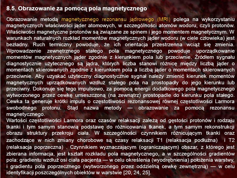 8.5. Obrazowanie za pomocą pola magnetycznego Obrazowanie metodą magnetycznego rezonansu jądrowego (MRI) polega na wykorzystaniu magnetycznych właściw