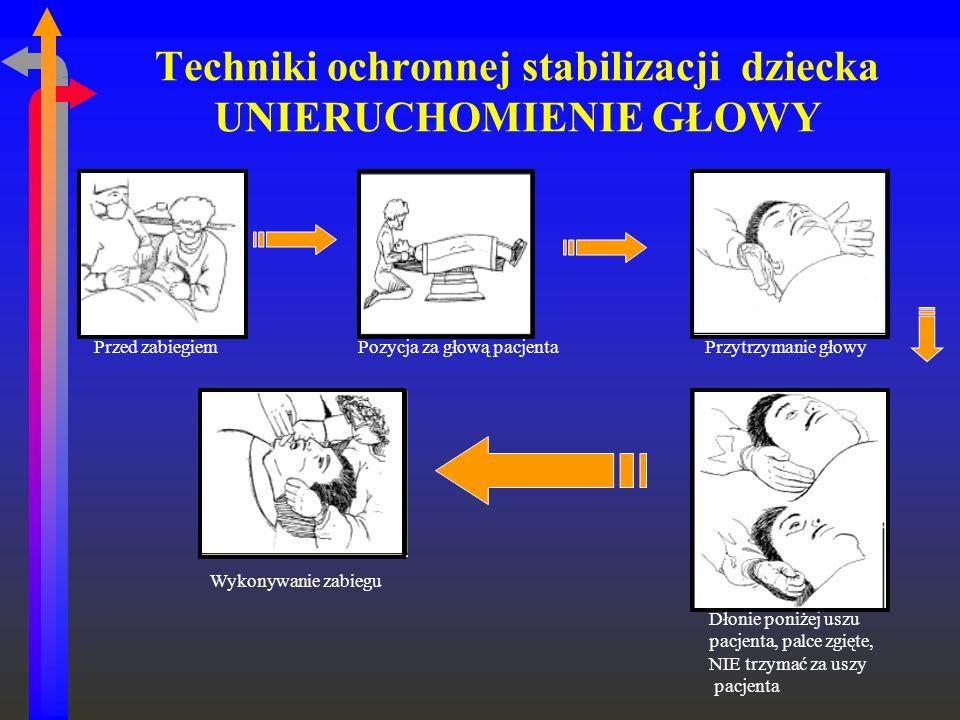 Techniki ochronnej stabilizacji dziecka UNIERUCHOMIENIE GŁOWY Przed zabiegiem Pozycja za głową pacjenta Przytrzymanie głowy Dłonie poniżej uszu pacjen