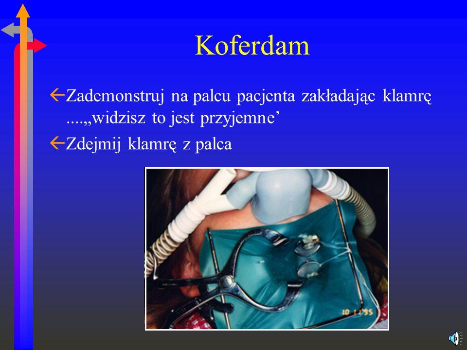 Koferdam ßZademonstruj na palcu pacjenta zakładając klamrę....widzisz to jest przyjemne ßZdejmij klamrę z palca