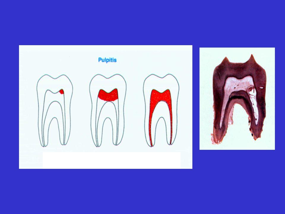 PODZIAŁ CHORÓB MIAZGI WG SCHRODER A. Zapalenie miazgi korony zęba (pulpitis coronalis) B. Całkowite zapalenie miazgi (pulpitis totalis) C. Martwica mi