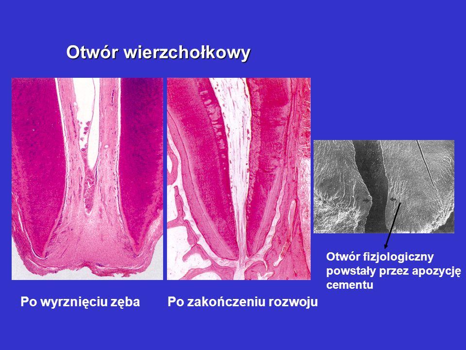 Metody leczenia endodontycznego przykrycie pośrednie przykrycie bezpośrednie amputacja przyżyciowa amputacja mortalna ekstyrpacja w znieczuleniu eksty