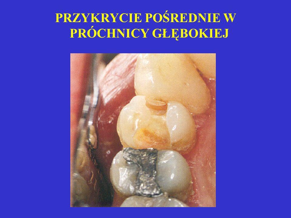 SCHEMAT POKRYCIA POŚREDNIEGO MIAZGI MIAZGI próchnica cement zębina reakcyjna Ca(OH)2