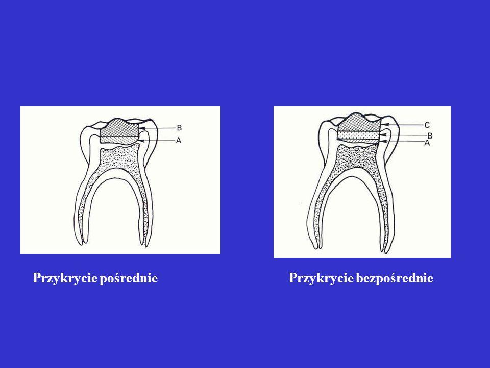 Leczenie biologiczne- przykrycie bezpośrednie Wskazania: przypadkowe lub pourazowe obnażenie miazgi do 1 mm2 Postępowanie: zaopatrzenie nietwardniejąc
