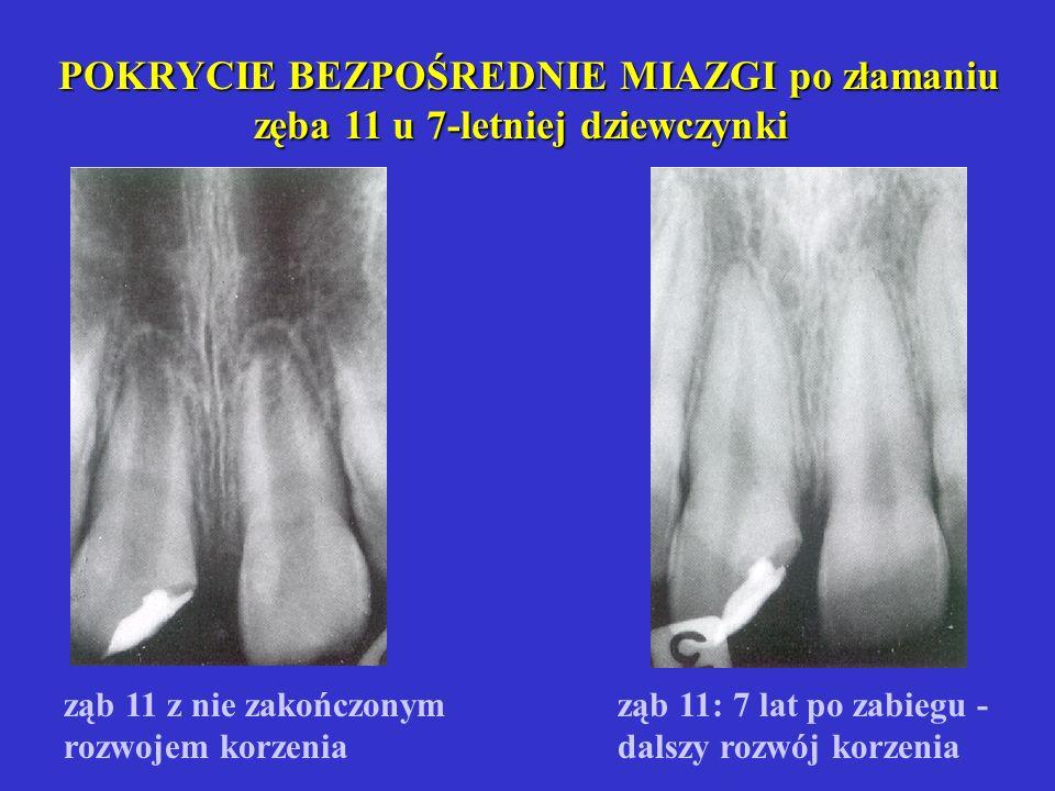 Obnażenie rogu miazgi - ząb 14