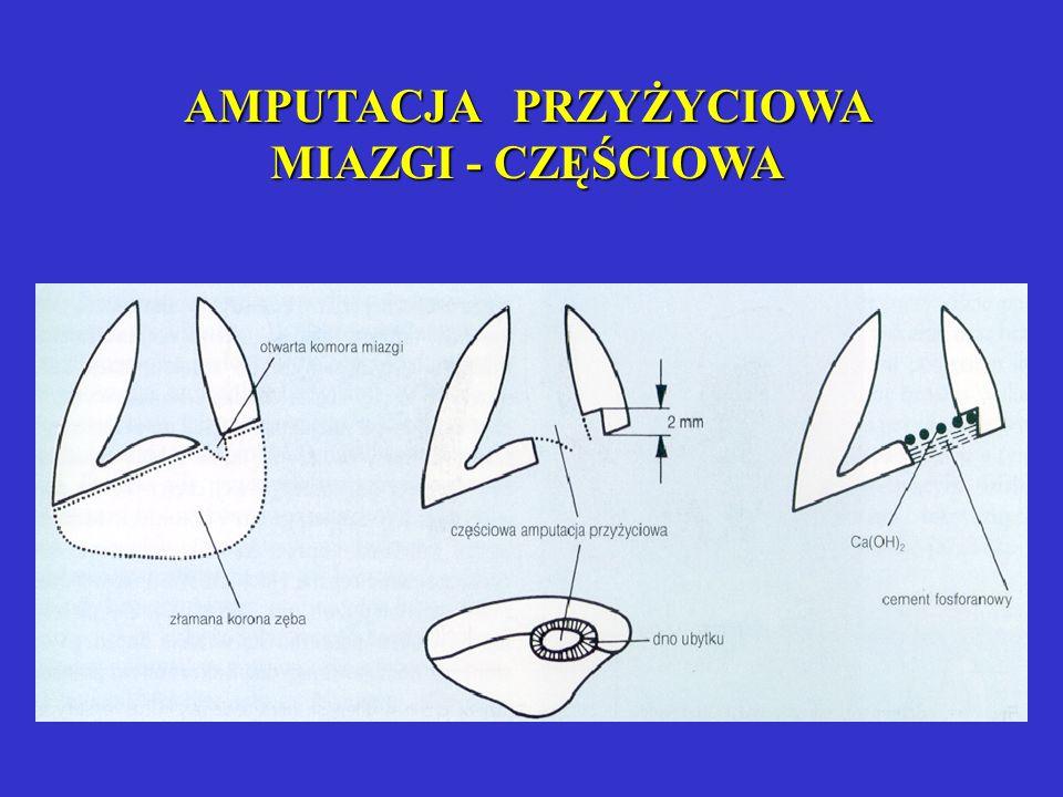 Leczenie biologiczne - amputacja przyżyciowa Wskazania: próchnicowe lub pourazowe (w dniu urazu) obnażenie miazgi powyżej 1mm2 Postępowanie: 1- wykona