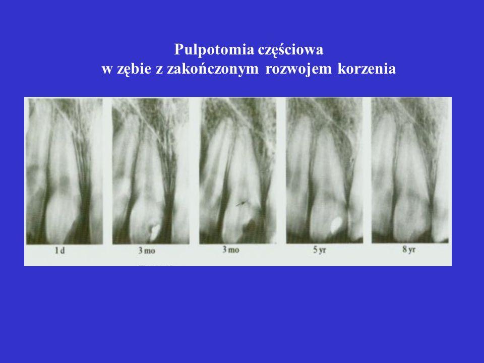 Pulpotomia częściowa w zębie z nie zakończonym rozwojem korzenia