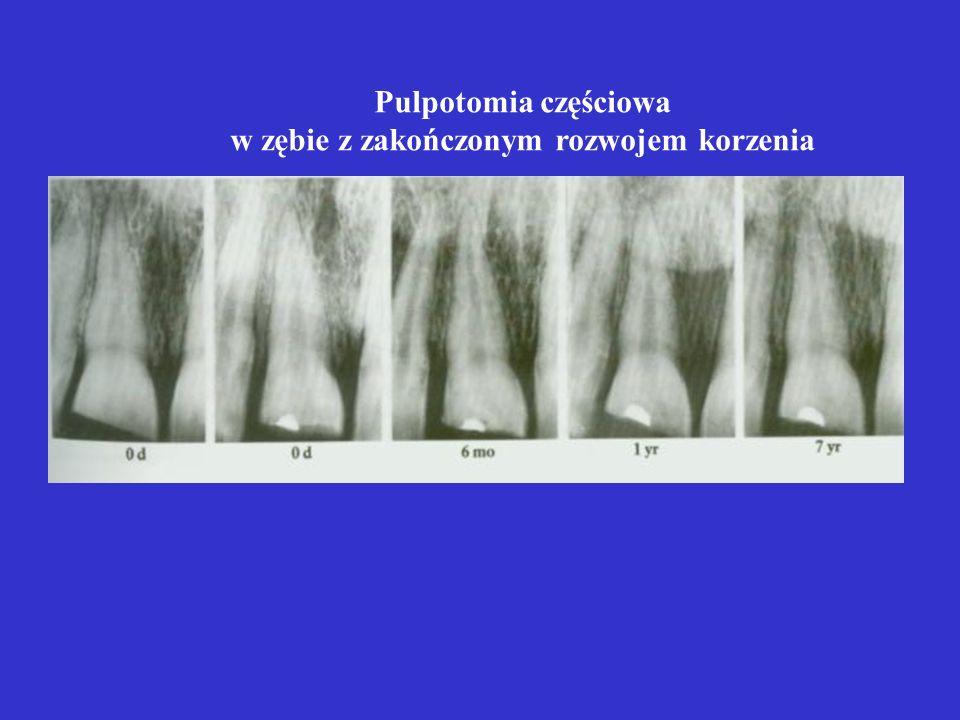 Pulpotomia częściowa w zębie z zakończonym rozwojem korzenia