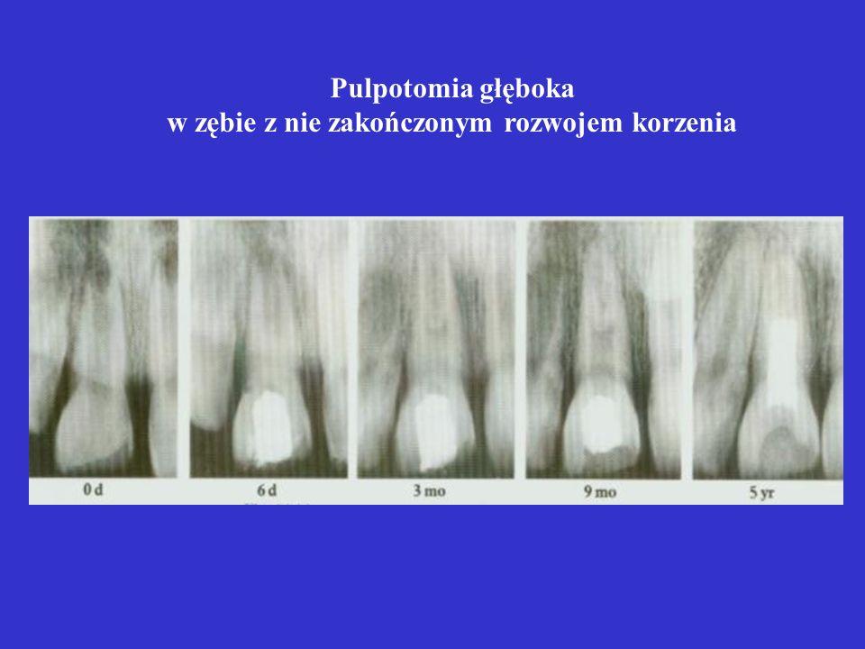 Pulpotomia głęboka w zębie z nie zakończonym rozwojem korzenia