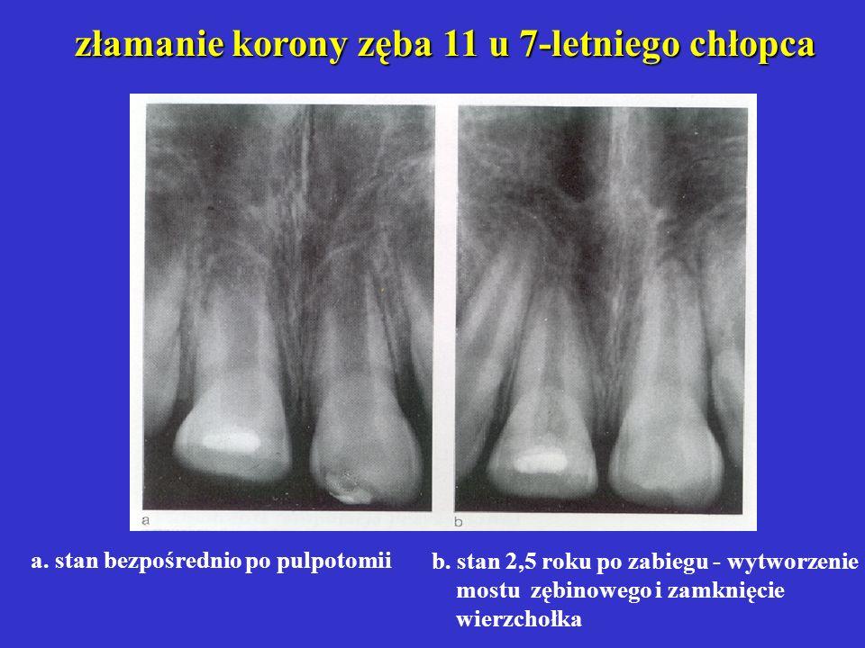 widok komory po usunięciu miazgi komorowej ujścia kanałów pokryte preparatem Ca(OH)2