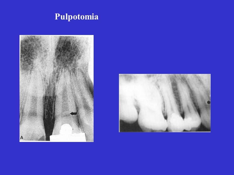złamanie korony zęba 11 u 7-letniego chłopca złamanie korony zęba 11 u 7-letniego chłopca a. stan bezpośrednio po pulpotomii b. stan 2,5 roku po zabie