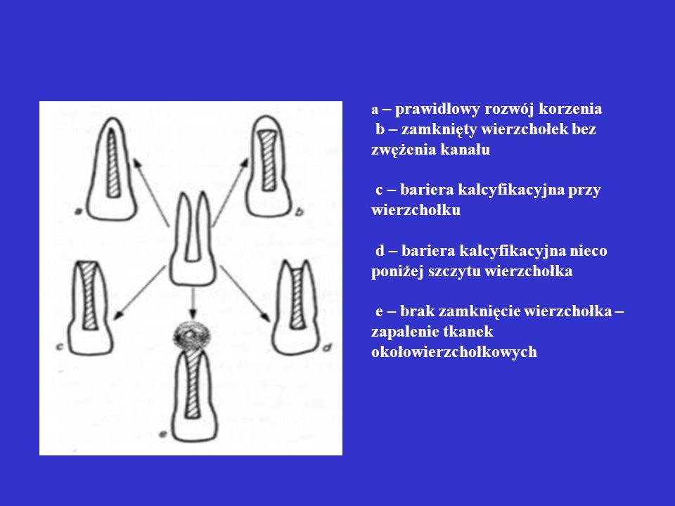 Schemat przedstawiający różne stadia rozwoju korzeni po zastosowaniu procedur apeksyfikacji