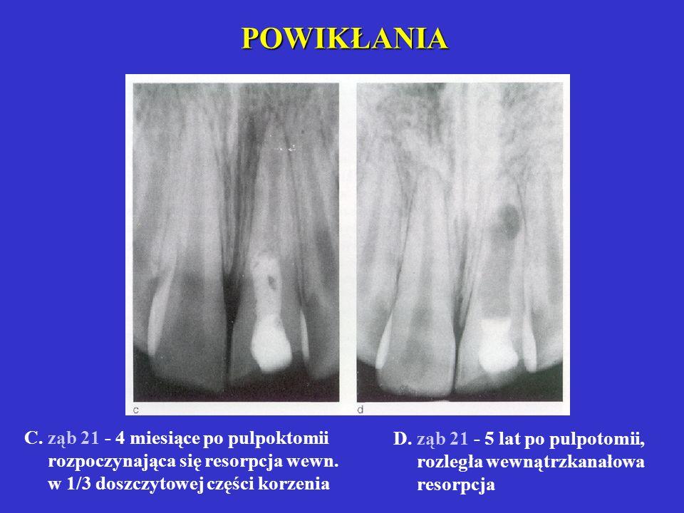POWIKŁANIA niedotworzenie korzenia: nie zamknięcie otworu wierzchołkowego, brak wzrostu korzenia, szerokie światło kanału resorpcja wewnętrzna i zewnę