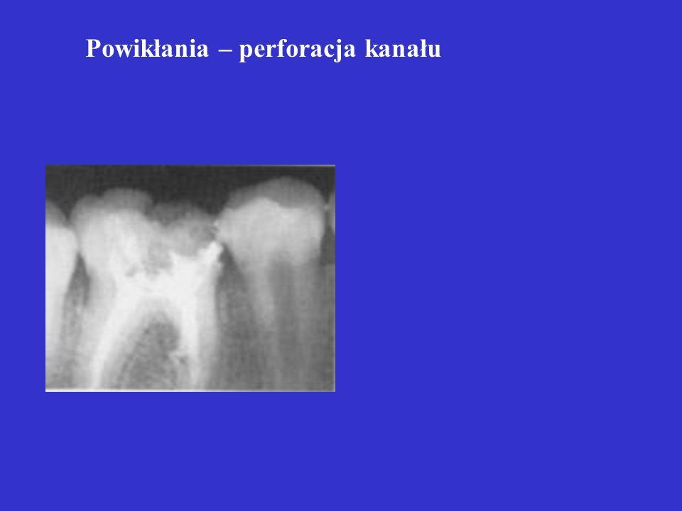 POWIKŁANIA C. ząb 21 - 4 miesiące po pulpoktomii rozpoczynająca się resorpcja wewn. w 1/3 doszczytowej części korzenia D. ząb 21 - 5 lat po pulpotomii