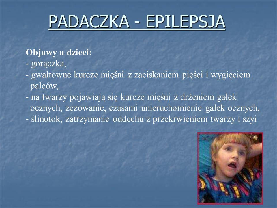 Objawy u dzieci: - gorączka, - gwałtowne kurcze mięśni z zaciskaniem pięści i wygięciem palców, - na twarzy pojawiają się kurcze mięśni z drżeniem gał