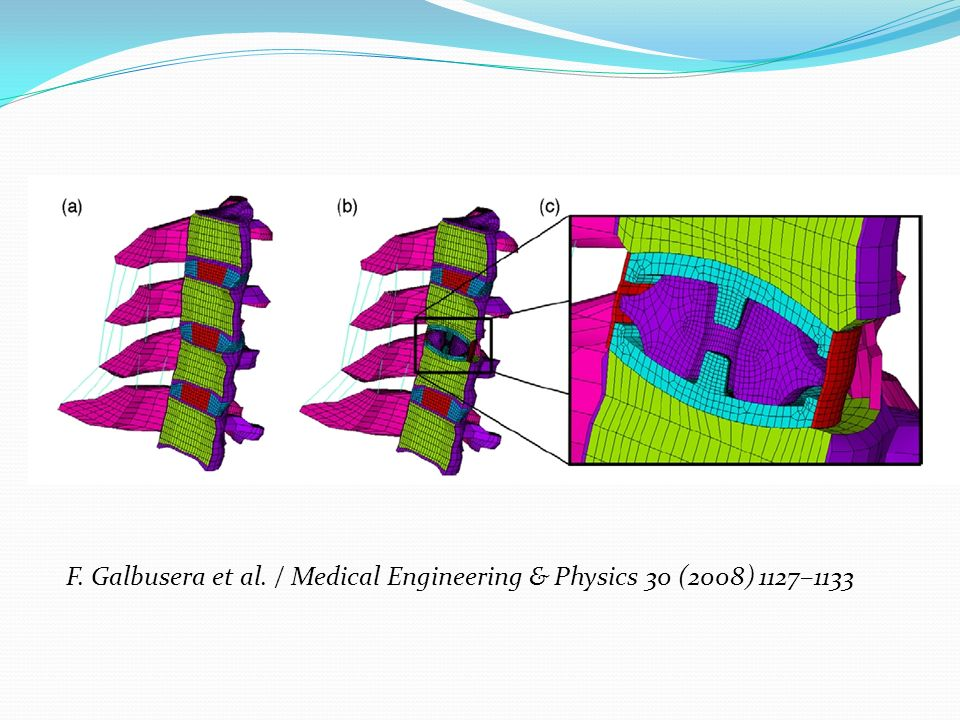 F. Galbusera et al. / Medical Engineering & Physics 30 (2008) 1127–1133