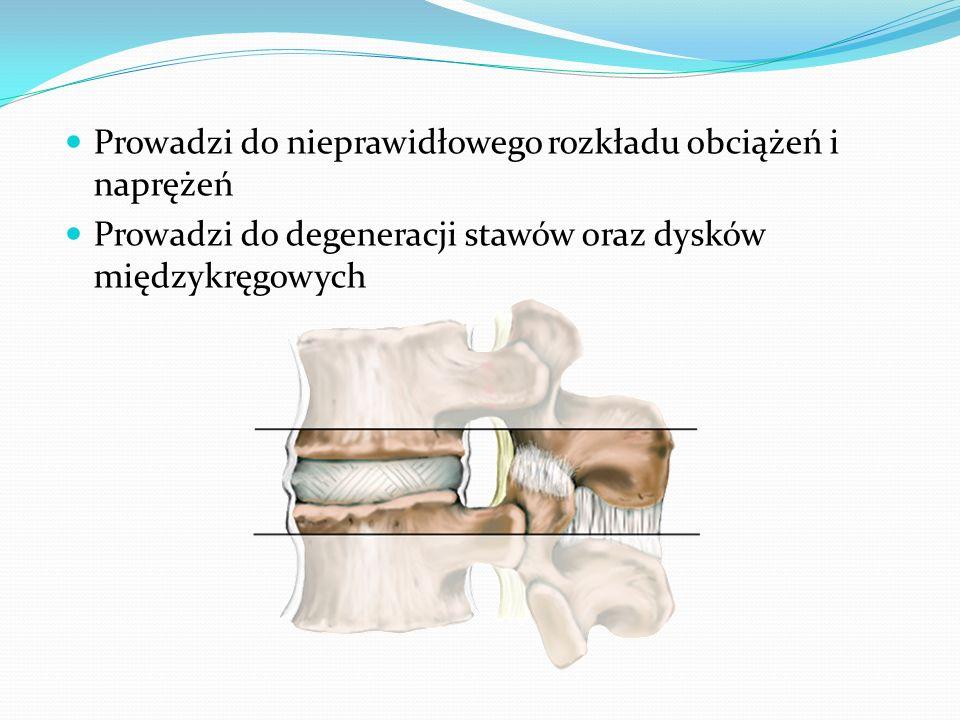 Prowadzi do nieprawidłowego rozkładu obciążeń i naprężeń Prowadzi do degeneracji stawów oraz dysków międzykręgowych