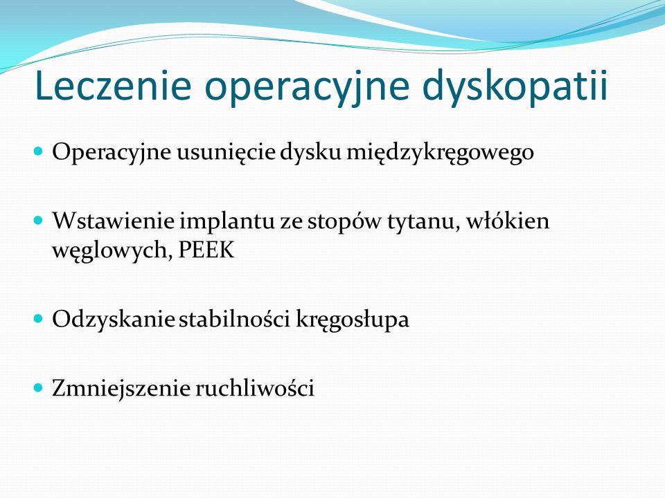 Leczenie operacyjne dyskopatii Operacyjne usunięcie dysku międzykręgowego Wstawienie implantu ze stopów tytanu, włókien węglowych, PEEK Odzyskanie sta