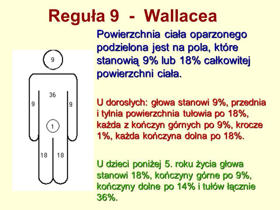 Reguła 9 - Wallacea Powierzchnia ciała oparzonego podzielona jest na pola, które stanowią 9% lub 18% całkowitej powierzchni ciała. U dorosłych: głowa