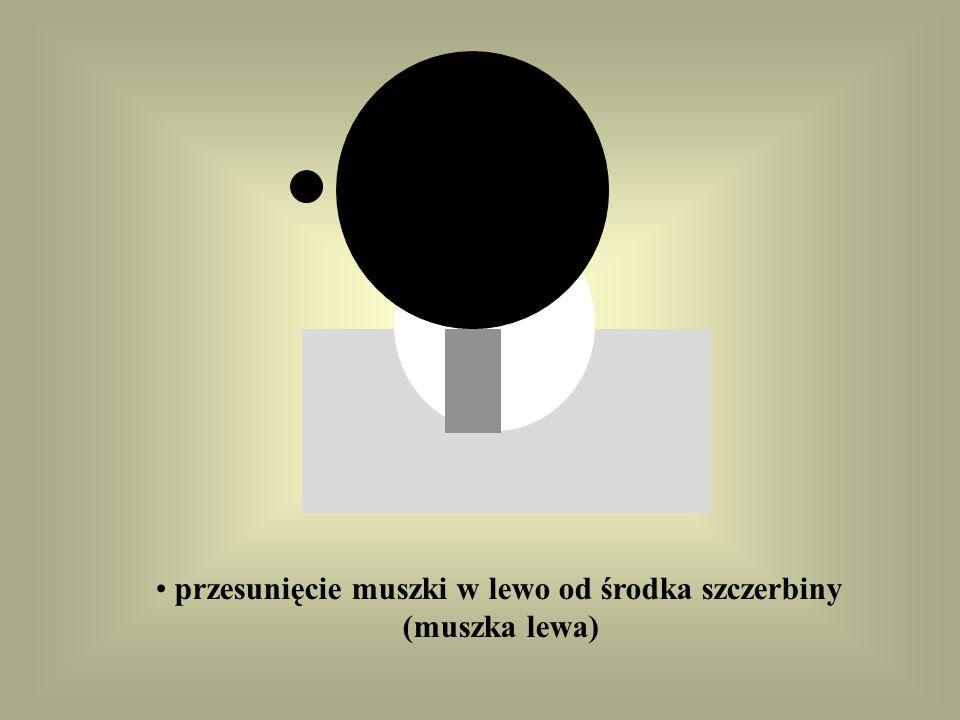 przesunięcie muszki w prawo od środka szczerbiny (muszka prawa);