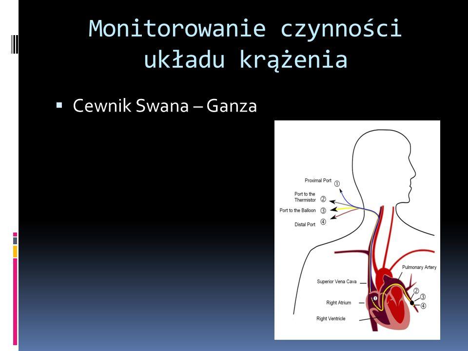 Monitorowanie czynności układu krążenia Cewnik Swana – Ganza