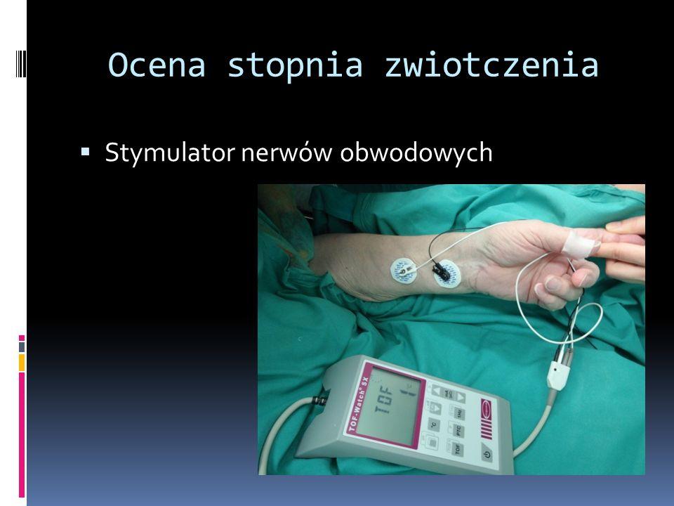 Ocena stopnia zwiotczenia Stymulator nerwów obwodowych