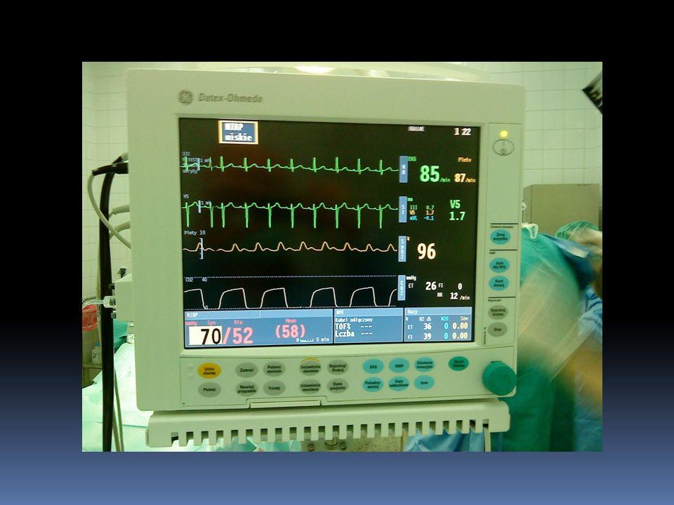 Monitorowanie czynności układu krążenia Cewnik Swana – Ganza cewnik 4-światłowy: pomiar ciśnienia w prawym przedsionku (1 – 8 mmHg) pomiar ciśnienia w prawej komorze (skurczowe: 15 – 28 mmHg, końcowo-rozkurczowe: 0 – 8 mmHg) pomiar OCŻ (1 – 10 mmHg) pomiar ciśnienia w tętnicy płucnej (skurczowe: 15 – 28 mmHg, rozkurczowe: 5 – 16 mmHg, średnie: 10 – 22 mmHg) pomiar ciśnienia zaklinowania (5 – 16 mmHg) pomiar rzutu minutowego serca (pojemność minutowa, 5 – 6 l/min)