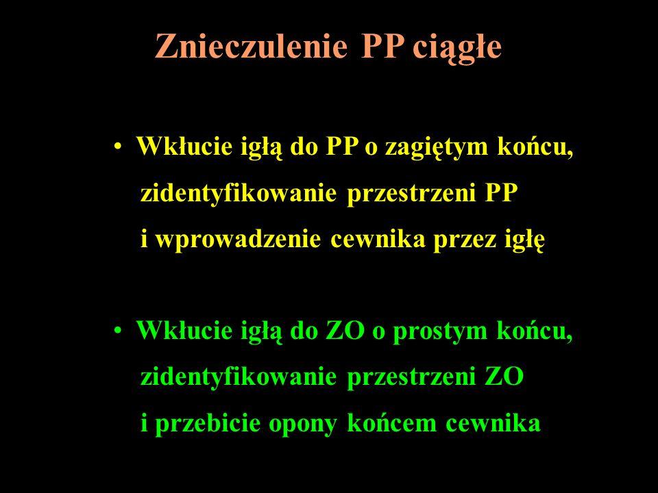 Znieczulenie PP ciągłe Wkłucie igłą do PP o zagiętym końcu, zidentyfikowanie przestrzeni PP i wprowadzenie cewnika przez igłę Wkłucie igłą do ZO o pro