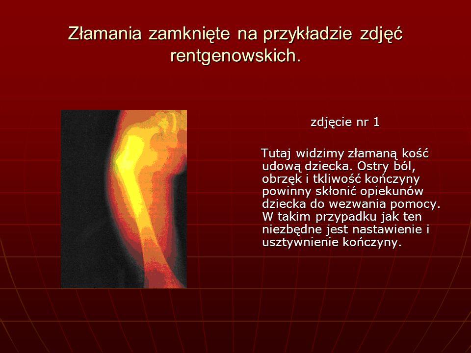Złamania zamknięte na przykładzie zdjęć rentgenowskich. zdjęcie nr 1 zdjęcie nr 1 Tutaj widzimy złamaną kość udową dziecka. Ostry ból, obrzęk i tkliwo